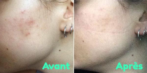 Souvent En finir avec les cicatrices d'acné en 1 semaine [AVANT/APRÈS  YQ76